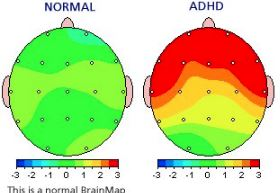Overview: QEEG Brain Map & Neurofeedback | Behavioral ociates on
