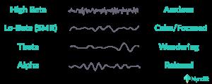 Brainwaves neurofeedback