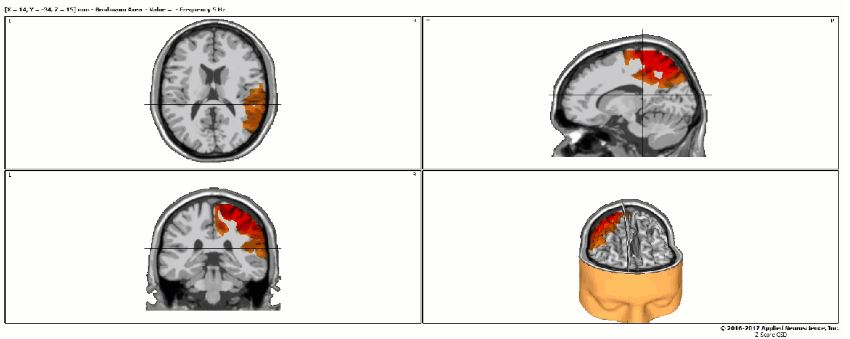 QEEG Brain Mapping Brain Scan